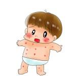 赤ちゃんのあせも予防と対策|病院に行く目安について