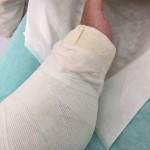 アキレス腱手術の体験談|手術の経過やリハビリについて